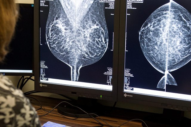The new pathway will allow patients with suspected cancer to be fast tracked even when symptoms don't meet all the guidelines